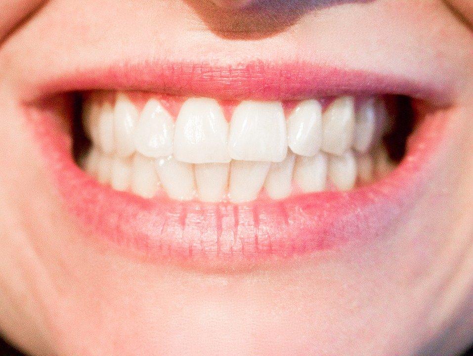 6 Remedios naturales para tener los dientes más blancos